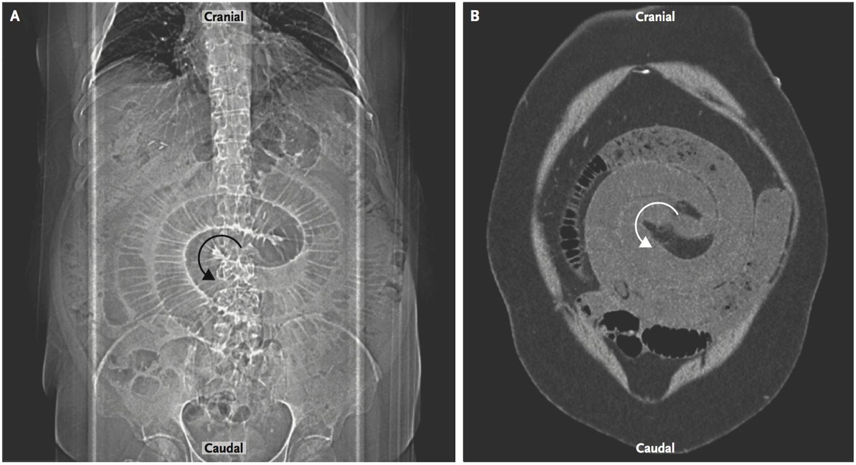 [NEJM临床医学影像]:旋转征:胃Roux-en-Y手术后的肠扭转