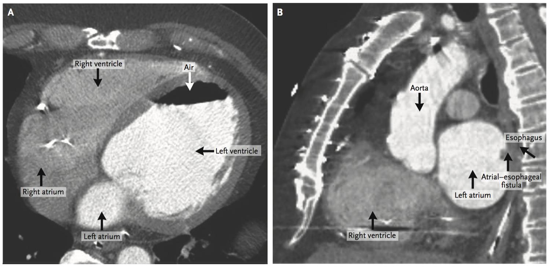 [NEJM临床医学影像]:左心房和左心室内的气体