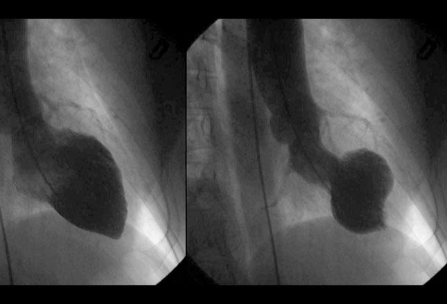 [MEDSCAPE]: 诊断应激性心肌病的关键