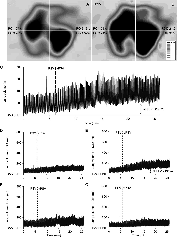 [Blue Journal影像]:可变压力支持通气对肺局部通气均一性的影响