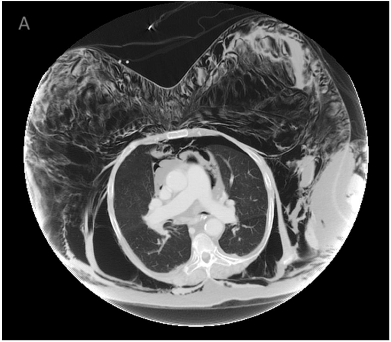 [Blue Journal医学影像]:气管穿孔后弥漫性皮下气肿