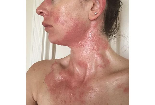 [MEDSCAPE]: 10种中毒或疾病的皮肤表现