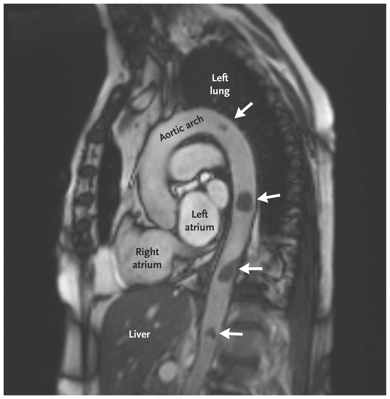[NEJM临床医学影像]:移动的主动脉血栓