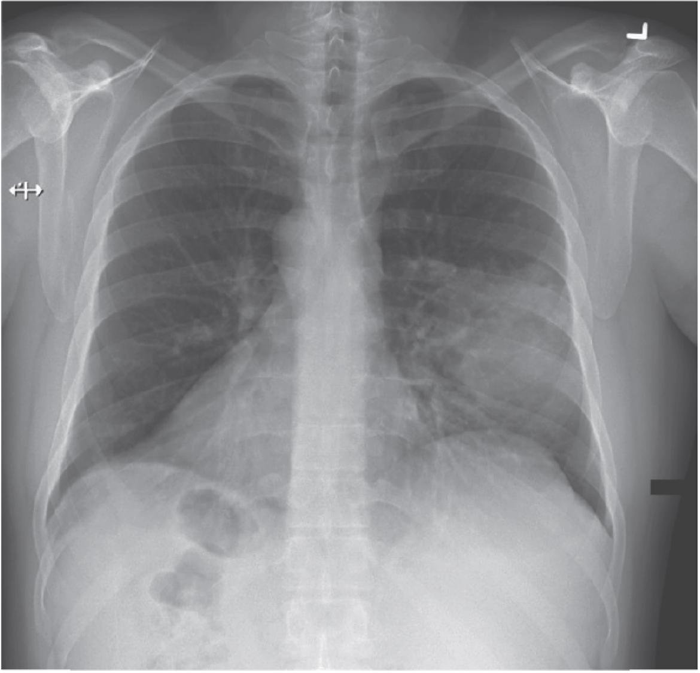 [临床医学影像]:左中叶肺炎