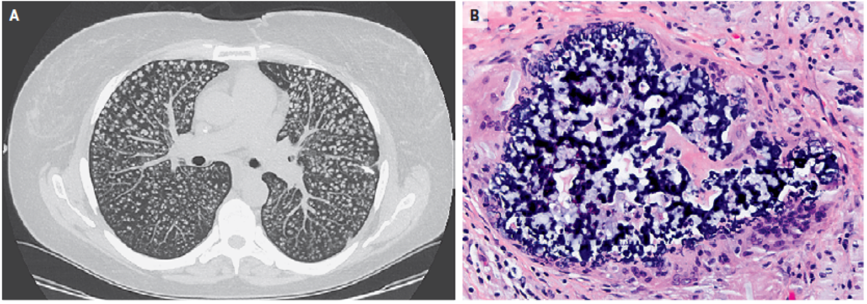 [NEJM临床医学影像]:肺异物肉芽肿