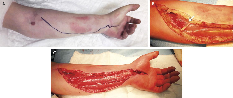 [临床医学影像]:骨筋膜室综合征