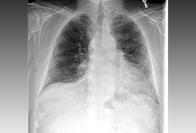 [MEDSCAPE]:特发性肺间质纤维化