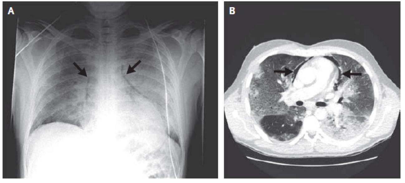 [NEJM临床医学影像]:甲型流感感染引起的纵隔气肿
