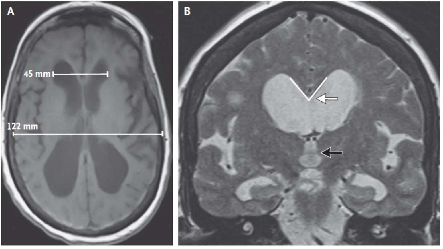 [NEJM临床医学影像]:颅压正常脑积水的脑室腹腔分流