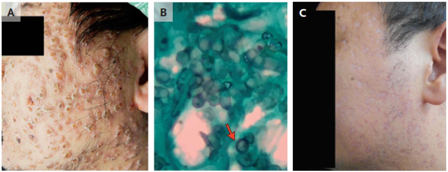 [NEJM临床医学影像]:马尼菲篮状菌感染