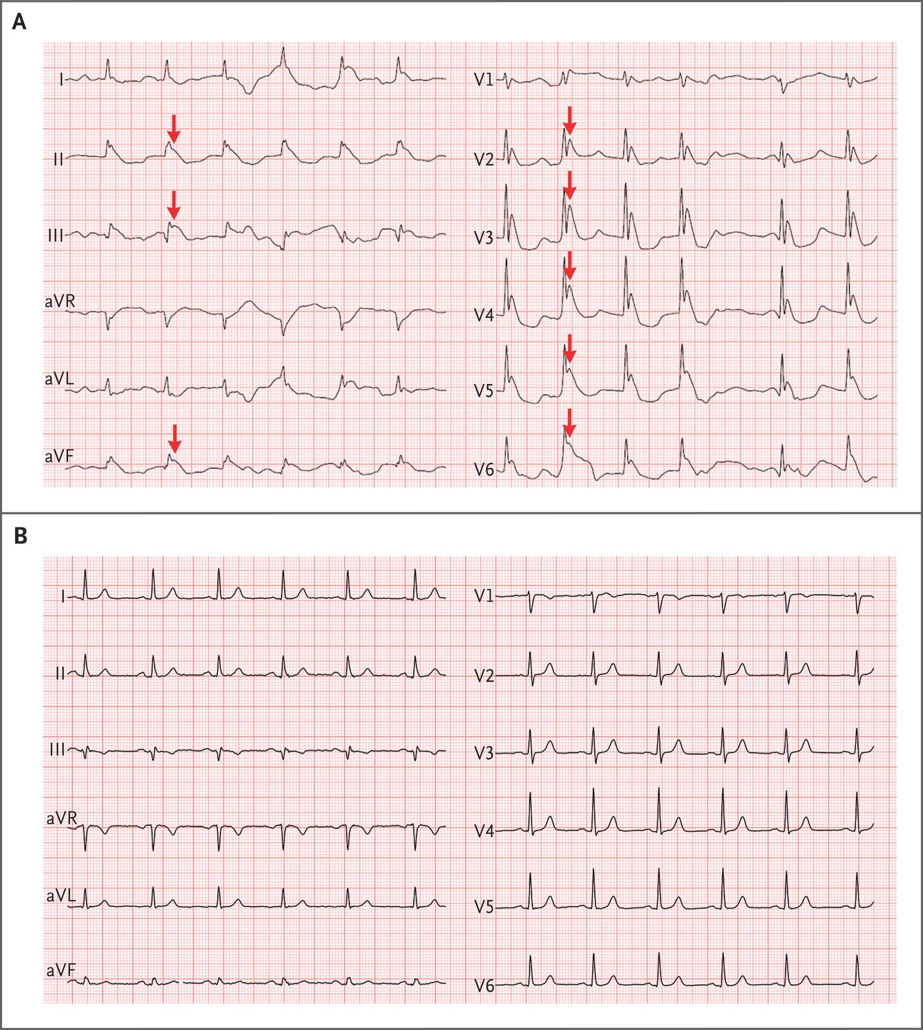 [NEJM临床医学影像]:低温时的心电图改变