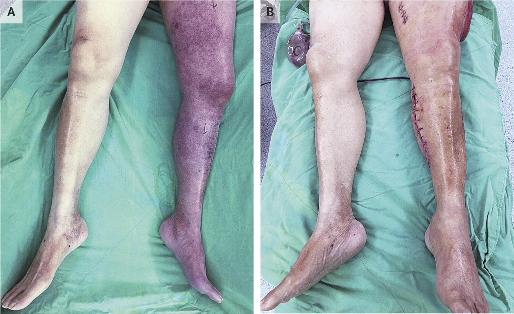 [NEJM临床医学影像]:骨筋膜室综合征的股蓝肿