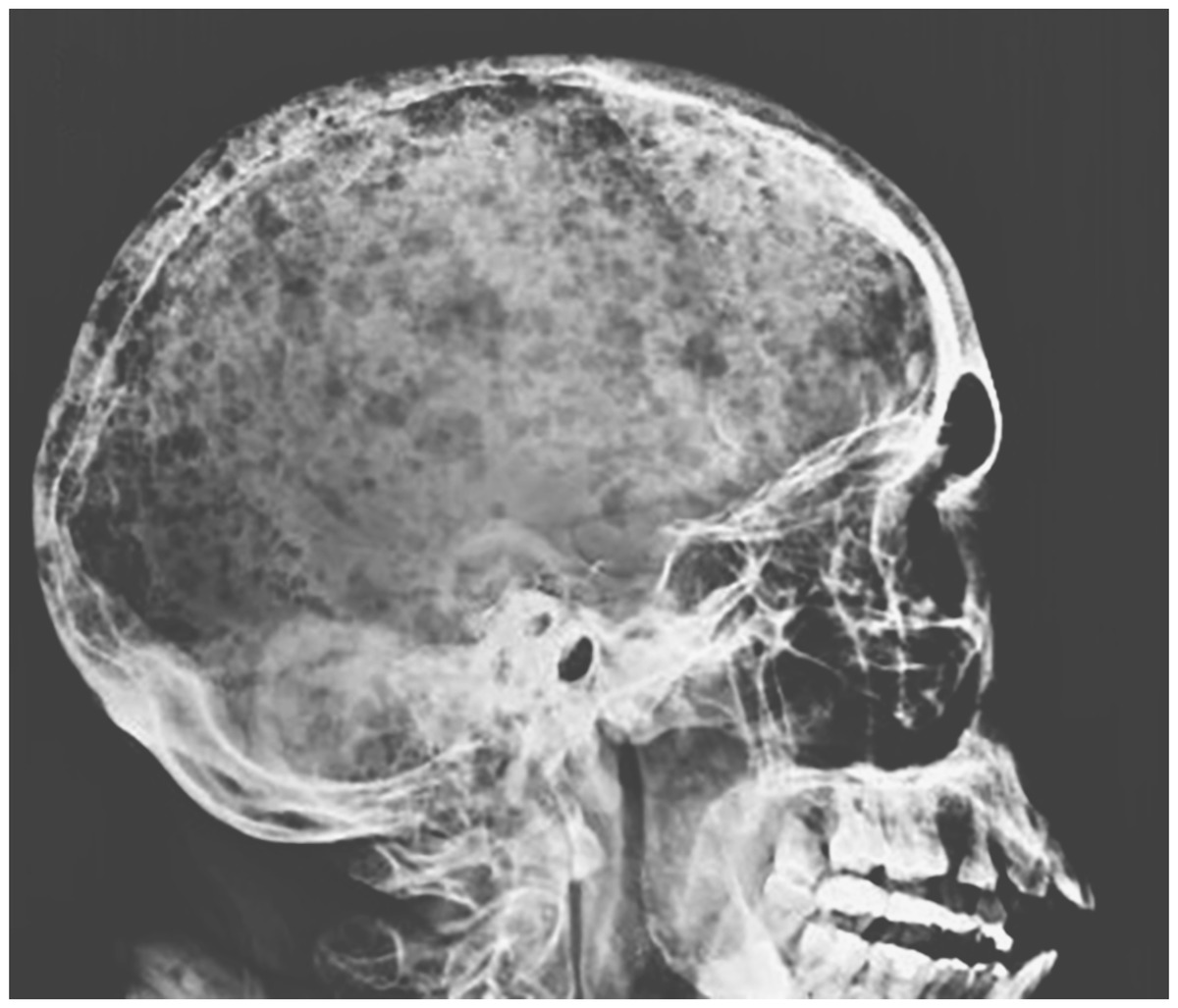 [NEJM临床医学影像]:雨滴头骨