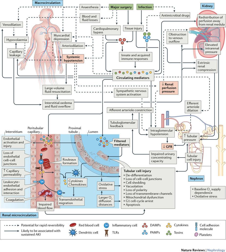 [Nature Review Nephrology]: ICU的急性肾损伤