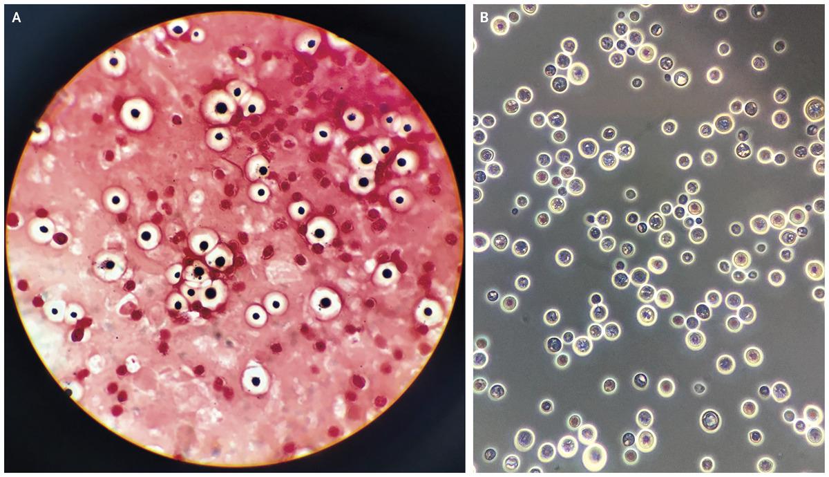 [NEJM临床医学影像]:新型隐球菌脑膜炎