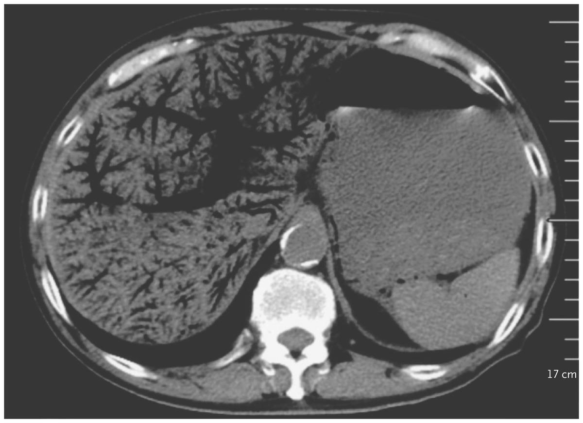 [NEJM临床医学影像]:门脉积气