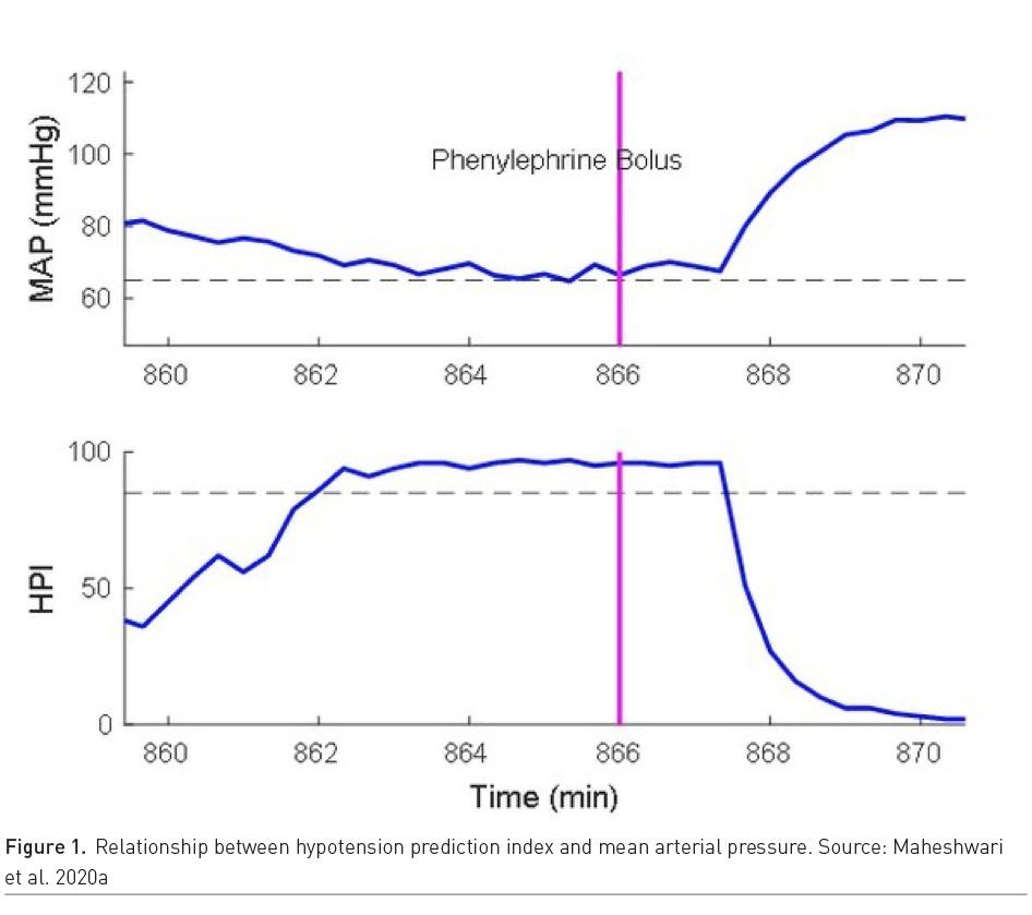[ICU Management & Practice]: 围手术期心肺功能异常:预测,质量,分析与人工智能